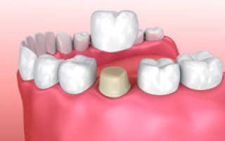 Стоит ли ставить коронки на зубы