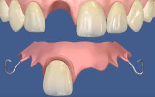 Какие вставные зубы лучше вставлять