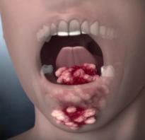 Как выглядит рак полости рта