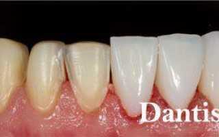Белые наклейки на зубы