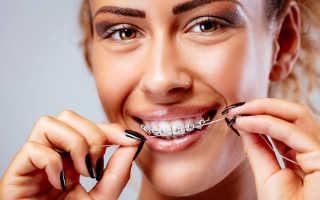 Чистка зубов после снятия брекетов