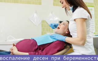 Как лечить воспаление десен при беременности