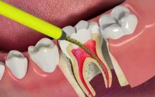 Свищ после удаления зуба