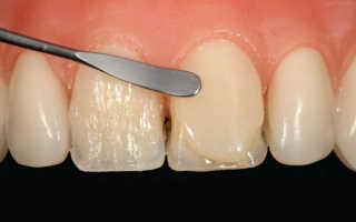 Больно ли наращивать зуб