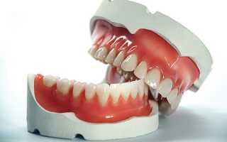 Бюгельный протез при полном отсутствии зубов