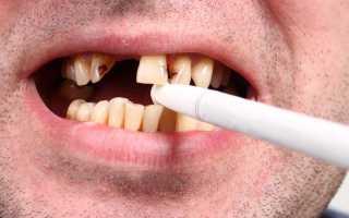 Зубы после курения