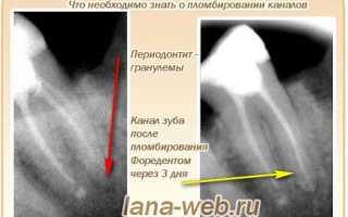 Передонтитный зуб лечение