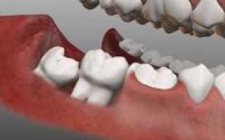 Зуб мудрости 8 или 9