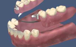 Особенности протезирования верхней челюсти