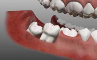 Лезет зуб мудрости болит