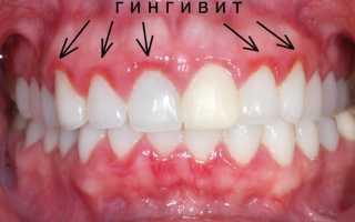 Опухла десна вокруг зуба