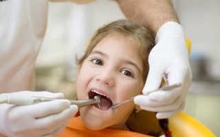 Флюс у детей молочных зубов