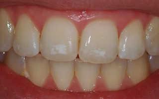 Белые пятна на зубах у взрослых причины
