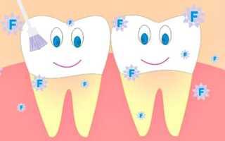 Глубокое фторирование молочных зубов