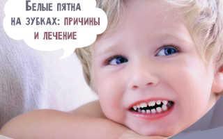 Белые полоски на зубах у ребенка