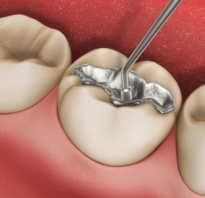 Из чего делают зубные пломбы