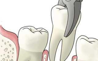 Ранка после удаления зуба