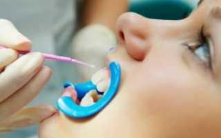 Фторирование зубов дома