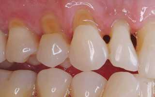 Клиновидный дефект зубов причины