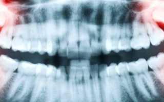 После удаления ретинированного зуба мудрости