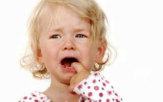 Гингивит при прорезывании зубов