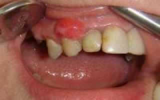 Чем опасна киста зуба