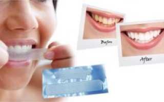 Как использовать полоски для отбеливания зубов
