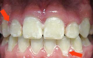 Белый налет на зубах у ребенка