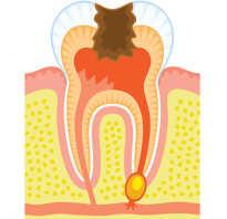 Удалить кисту зуба