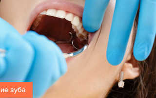 Поведение после удаления зуба
