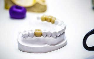 Коронки на задние зубы