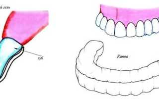 Отбеливание зубов капами с гелем