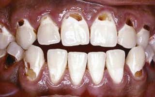 Дырки в зубах около десен