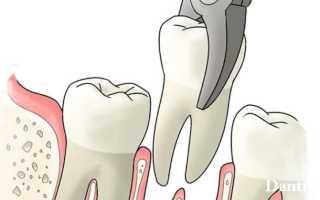 После удаления зуба сгустки крови