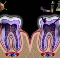 Воспаление канала зуба