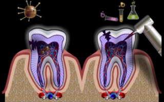 Воспаление в кости зуба