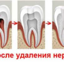 Как понять болит зуб или десна