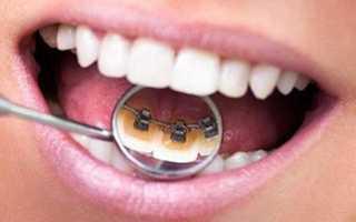 Стоматолог который ставит брекеты