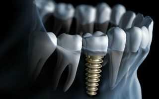 Чем имплант отличается от имплантанта