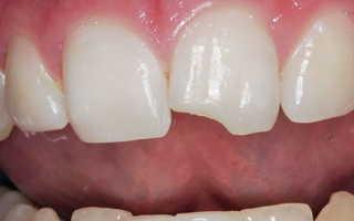 Откололся зуб и болит что делать