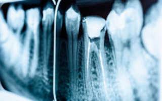 Как лечить гранулему зуба