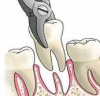 Когда ставить имплант после удаления зуба