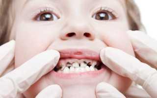 Посеребрение молочных зубов