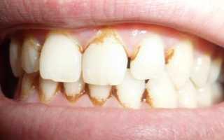 Зубная паста от налета на зубах