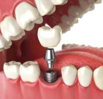 Как делают импланты зубные