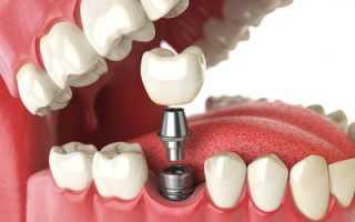 Из чего состоит имплант зуба