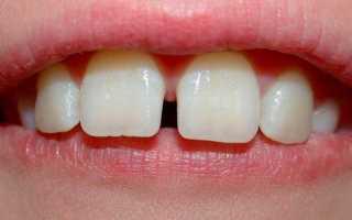 У ребенка щель между передними зубами