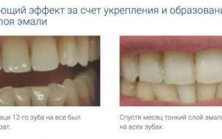 Искусственная эмаль для зубов