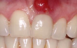 Киста в десне зуба последствия