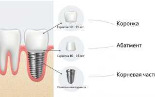 Срок службы импланта